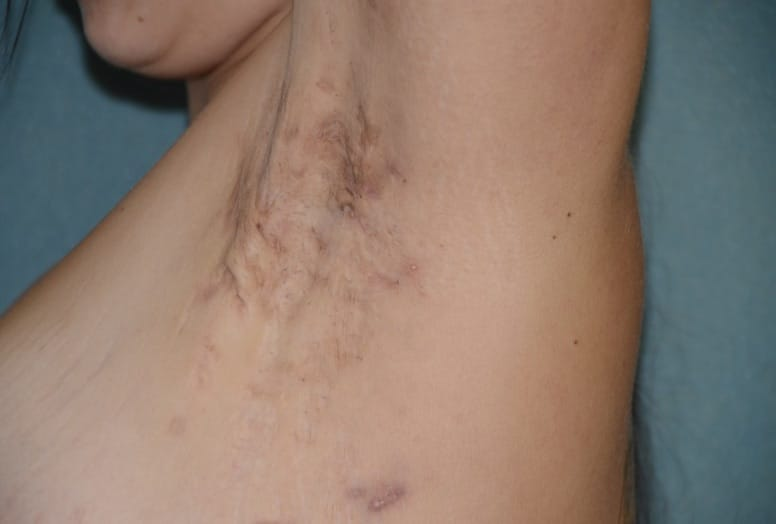 Moderate/Stage II HS on a person's left armpit