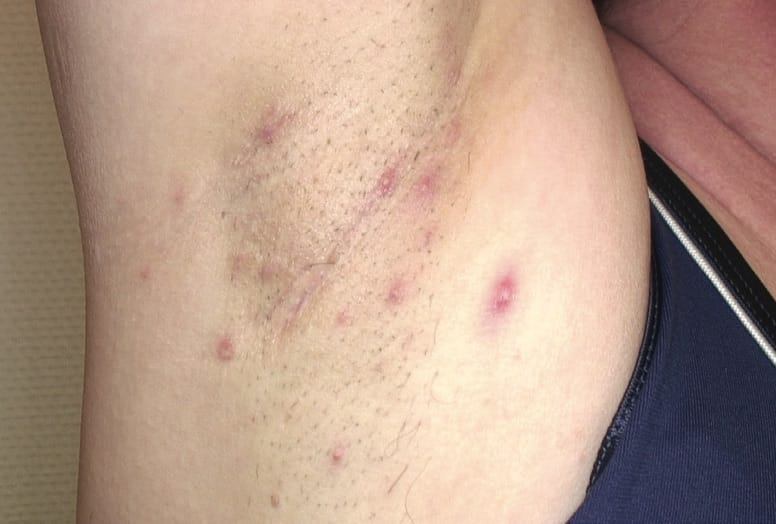 Moderate/Stage II HS on a person's right armpit