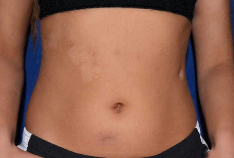 Moderate/Stage II HS on a person's stomach