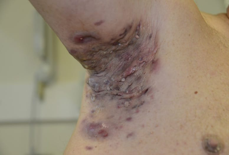 Severe/Stage III HS on a person's right armpit