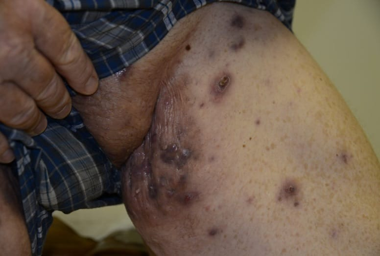 Severe/Stage III HS on the inside of a man's thigh