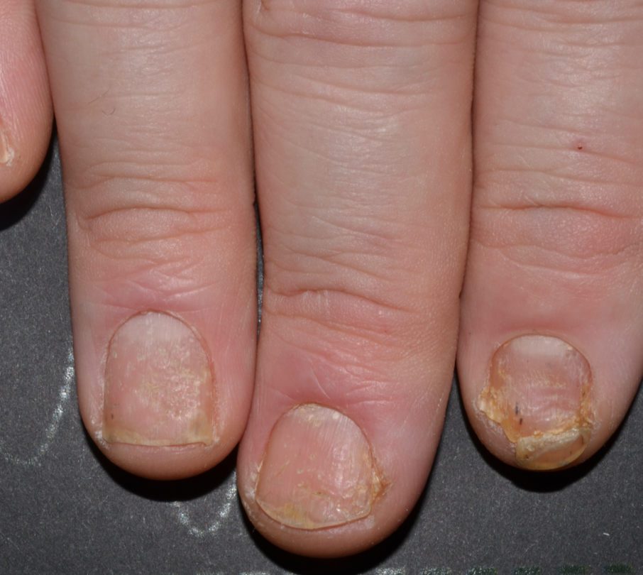 Before photo of patient with moderate to severe fingernail psoriasis