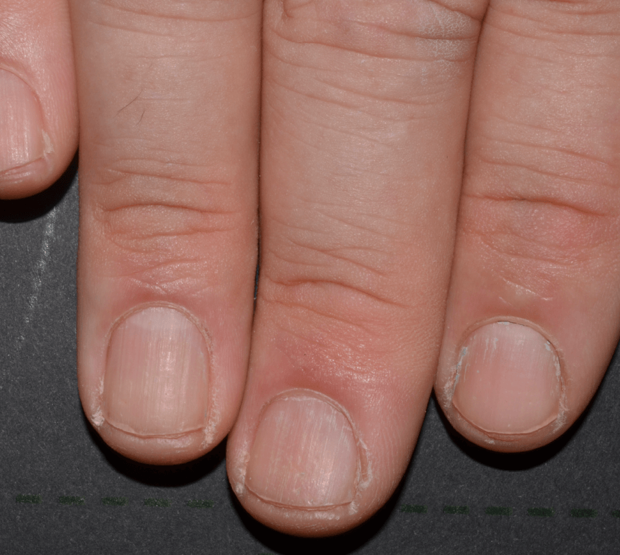 Photo of patient with moderate to severe fingernail psoriasis after treatment